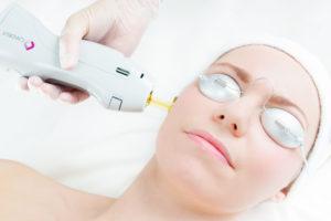 187 Laser Pigment Reduction For Sun Damaged Skin