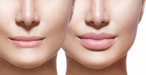 Lips side by side