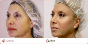 Silhouette-Soft-Lift-Before-After