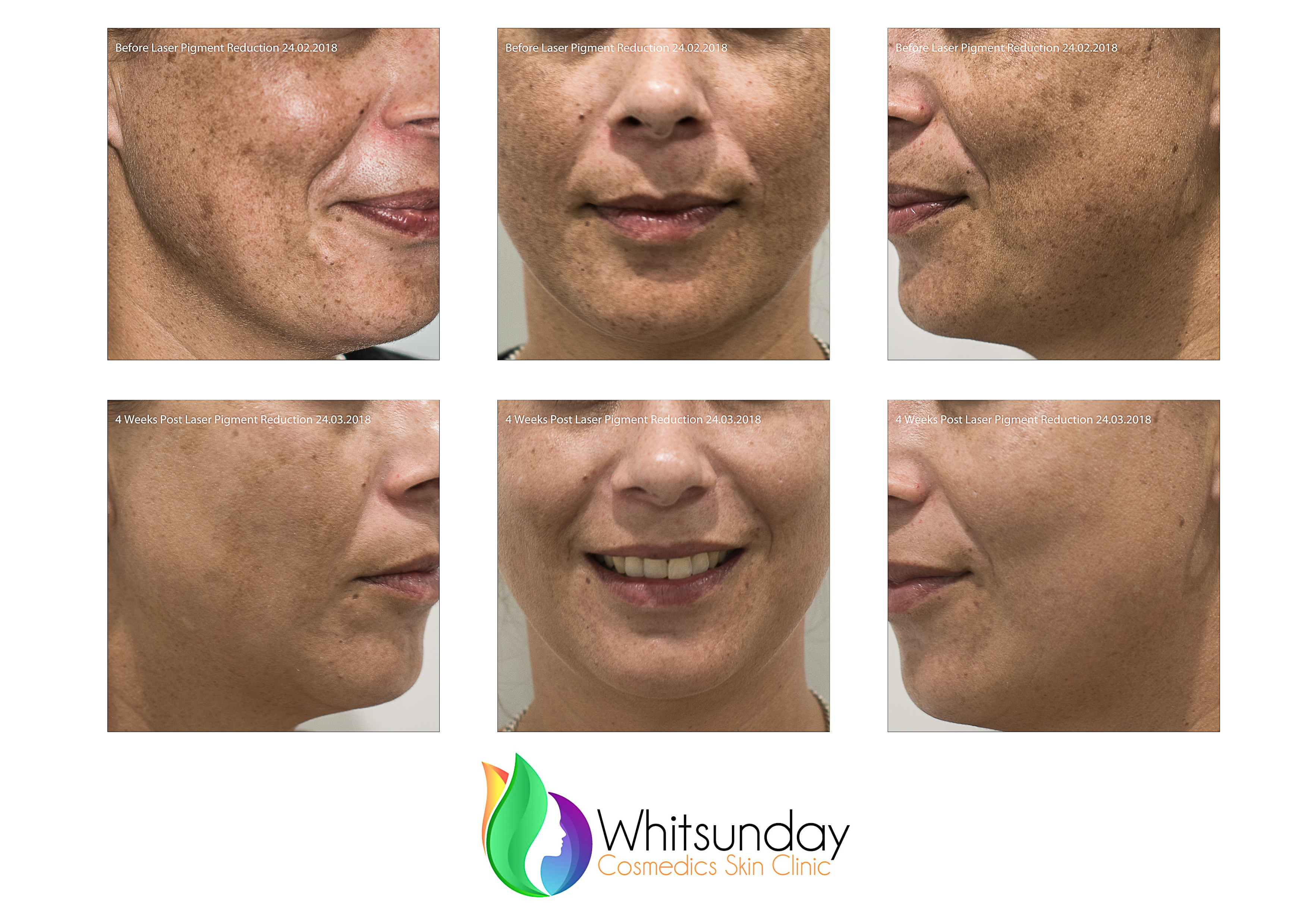 LASER Pigment Reduction for Sun-damaged Skin